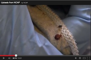 bed bug vid
